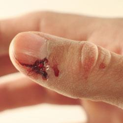 Lalimentation des enfants jusquà un an à atopitcheskom la dermatite chez