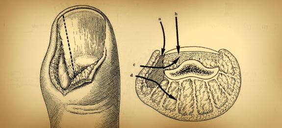 soigner-panaris-remede-ancien